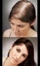 Trasplantes de pelo